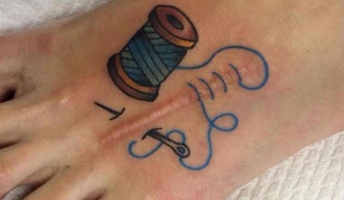 Cicatriz? Conhece tatuagens que ajudam a ocultar